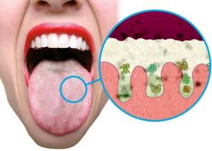 mondspoelmiddel tegen slechte adem